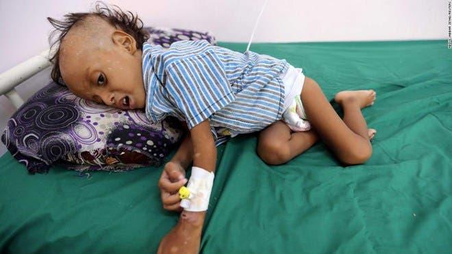 85,000 children under 5 may have died of starvation in Yemen war