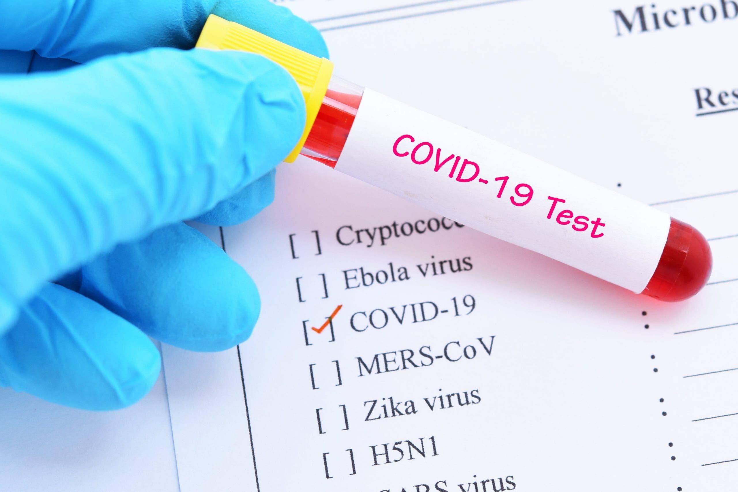 Coronavirus uu kusoo laba kacleeyey Soomaaliya iyo wararkii ugu dambeeyay kiisaska